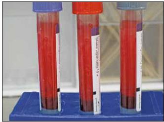 File:Blood Specimens.jpg